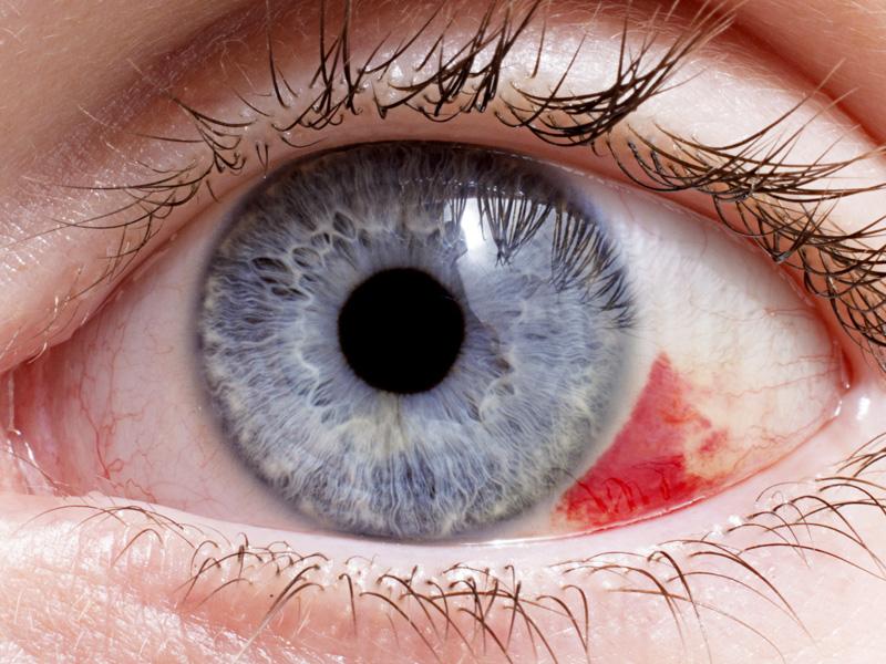 Presión elevada en el ojo